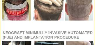 neograft recovery timeline neograft hair replacement prescription aesthetic and wellness spa