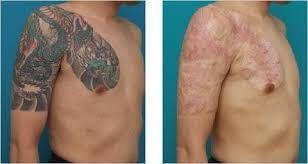 tattoo removal london looking for laser tattoo removal london belgravia cosmetic clinic