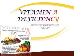 Night Blindness Caused By Vitamin A Deficiency Vitamin A Deficiency And Its Impact On Vision Authorstream