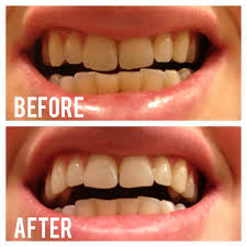 Cost Of Teeth Whitening Whitening Your Teeth Naturally With Activated Charcoal The