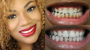Dentist That Do Teeth Whitening Cosmetic Implants And Dental Care Professional Resources For