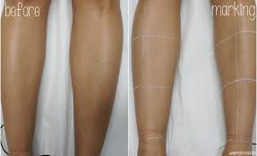 how to remove ingrown hair in thigh laser hair removal on legs demo faqs