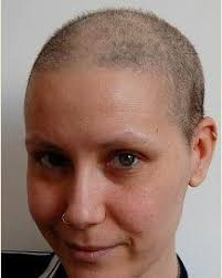 growing back afro american hair after chemo hair regrowth after chemo pictures of post chemotherapy growing hair