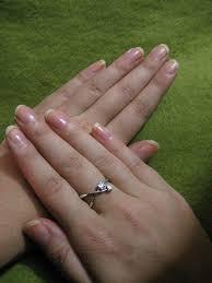 vertical ridges in fingernails answers on healthtap