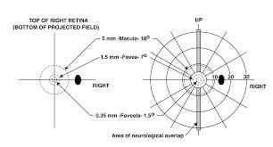 macular sparing versus foveola sparing