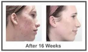 blu light therapy for acne chemical peels for acne scars at home free ebooks free ebooks blue