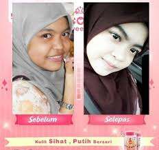 K Collagen k colly sweet 17 testimoni k colly booster k colly review