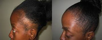 hair transplant for black women african american female hair transplant baldtruthtalk com