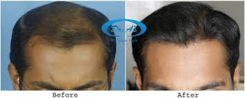 transplant hair second round draft what is best technique for hair transplant fue or fut or bio fue