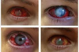 halloween hazards fancy dress contact lenses