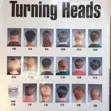 hair unlimited hair loss centers 10025 106 street edmonton
