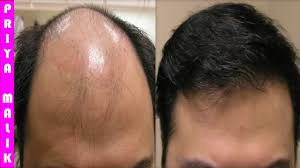grow long hair 100 natural hair loss treatment cure baldness