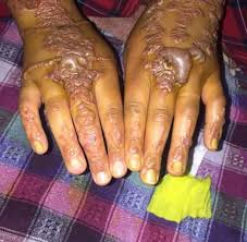 woman u0027s hands come out in blisters after getting black henna