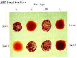 Serum Tes Golongan Darah pemeriksaan laboratorium forensik sederhana yumizone