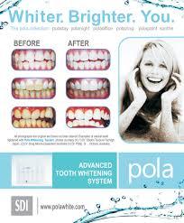 Dentist That Do Teeth Whitening Professional Tooth Whitening Embrace Dental Hygiene