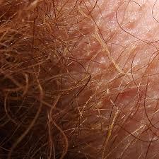 pubic hair gallery trichobacteriosis axillaris wikipedia