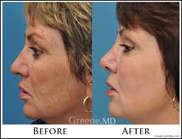 intense pulsed light review the world s most advanced laser ipl weston and fort