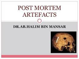 forensic medicine post mortem artefact