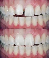 govind b patel dds and associates general dentistry 2957 w