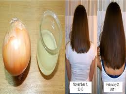 how to grow hair naturally fast using juice and eggs get rid
