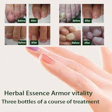 online get cheap vitamin e nails aliexpress com alibaba group