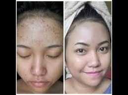 cara membuat wajah menjadi glowing secara alami ternyata beginilah cara membuat kulit wajah mulus tanpa bekas