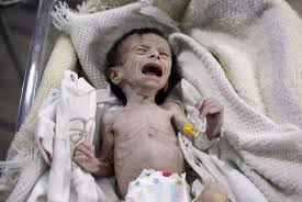 Why Cant I Last Longer In Bed We Are Paralyzed U0027 Families Suffer In Besieged Damascus Suburb