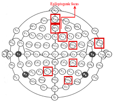 sensors free full text correlation networks for identifying