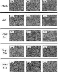 black onyx na t build multigene expression from a replicating adenovirus using native