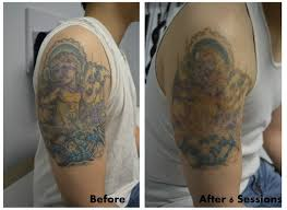 full color tattoo removal after 6 sessions look at that fading