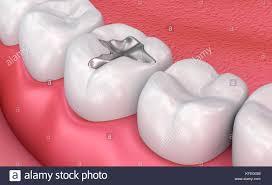pilonidal cyst teeth abscess stock photos u0026 abscess stock images alamy