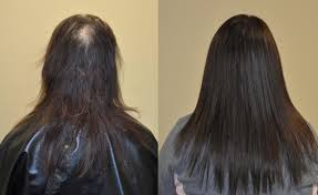 hair weaves for thinning hair thin hair di biase hair usa
