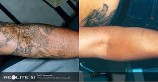 before after art of skin