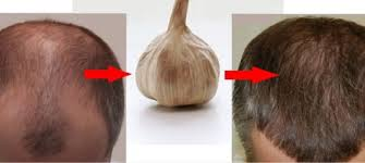 for hair best hair treatment for hair loss trendy hairstyles in the usa