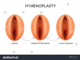 Hymen Female Anatomy Vector Illustration Hymen Restoration Stock Vector 616753586