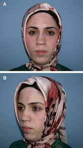 classification and treatment of the saddle nose deformity management of saddle nose deformity dermal and costal