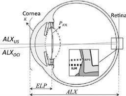 schematic of an eye see the text sec 2 for the meaning of