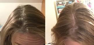 coke rinse hair i tried baking soda beauty hacks and was surprisingly impressed