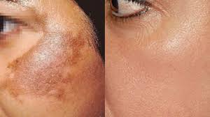 how to colour in a scar in your hairline how to use potato to treat skin pigmentation dark spots acne