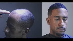 men hair weave pictures balding men s custom hair unit man weave youtube