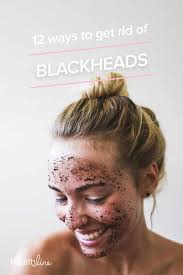 Face Acne Map Blackheads Causes Symptoms And Treatments