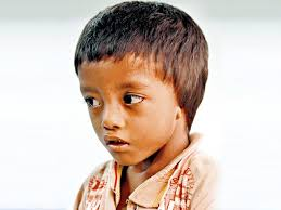 born without ears 4 year old nepal boy waits for a miracle