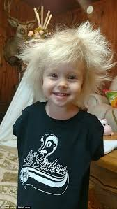 toddler hair arkansas girl s unruly hair due to genetic condition daily