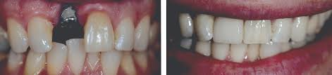 Dentist That Do Teeth Whitening Dental Teeth Cleaning And What Happens If You Do Not Brush