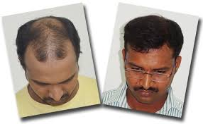 hair weaves for balding men what is the difference between hair weaving and a hair transplant