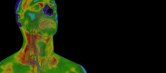 find a thermography clinic near you