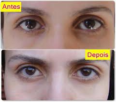 Amado Tratamentos para Olheiras - Cremes e Dermatologista   Mega Artigos @BE37