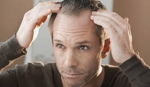 male pattern baldness hairstyles hair loss treatments aesthetics