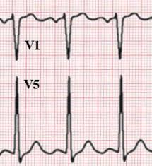 strain pattern ecg meaning chamber hypertrophy and enlargment ecgpedia