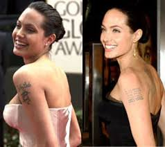 545 best new tattoo removal images on pinterest laser tattoo